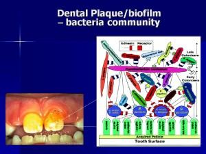 Dental Biofilm, sugar bugs, oral bacteria