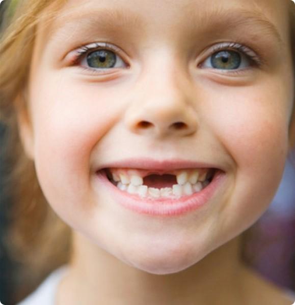 toothloss1.jpg